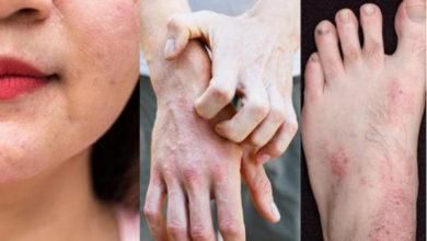 Photo of Viêm da cơ địa là gì? Nguyên nhân và triệu chứng của viêm da cơ địa?