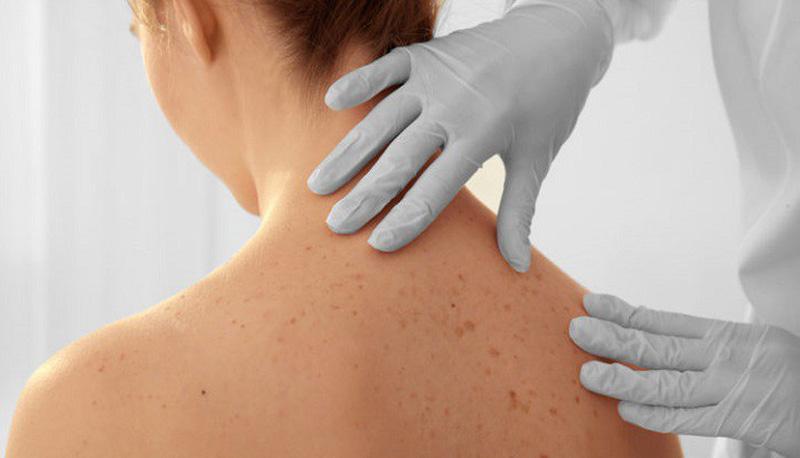 Photo of 10 dấu hiệu ung thư da bạn không nên bỏ qua