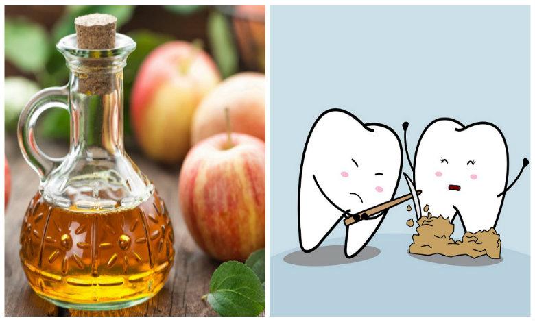 Photo of 5+ cách lấy cao răng bằng giấm dễ làm, hiệu quả rõ rệt