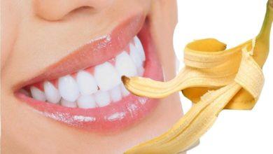 Photo of 2 cách lấy cao răng bằng vỏ chuối dễ làm như ăn kẹo