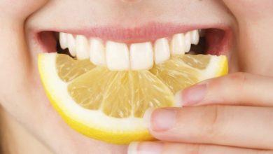 Photo of Tẩy trắng răng bằng chanh giúp thổi bay màu răng ố vàng