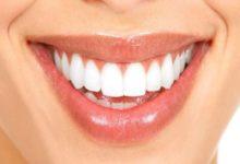 Photo of Tẩy trắng răng – Bài viết đầy đủ nhất cho người đang cần răng trắng