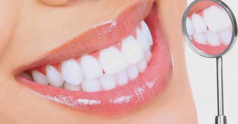 Tác hại của tẩy trắng răng bạn nên biết trước khi làm