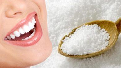 Photo of 9 cách tẩy trắng răng bằng muối an toàn, hiệu quả tại nhà