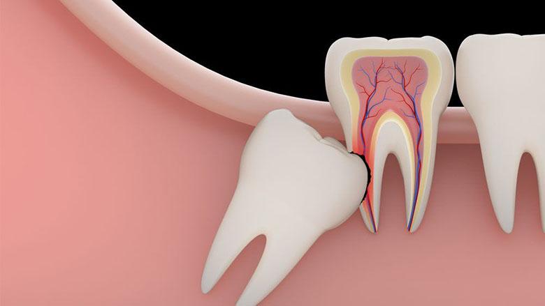 Ảnh hưởng của nhổ răng khôn