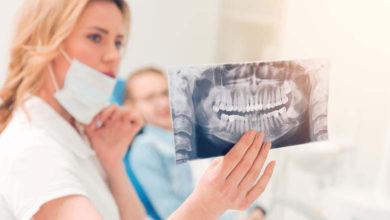 Photo of Đừng nhổ răng khôn khi chưa biết 9 điều sau!
