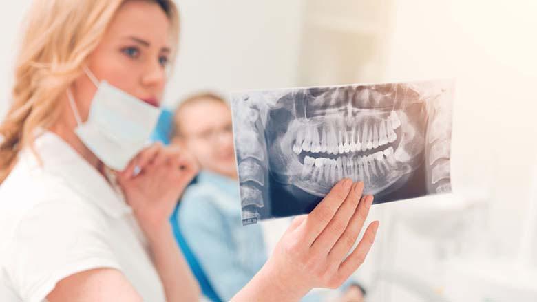 Đừng nhổ răng khôn khi chưa biết 9 điều sau!