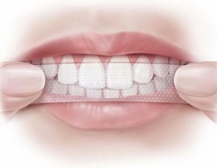 Miếng dán trắng răng chuyên dụng