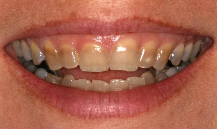 Răng bị xỉn màu do kháng sinh