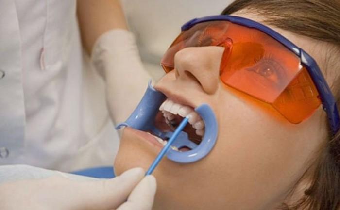 Nồng độ thuốc làm trắng răng vượt quá ngưỡng an toàn