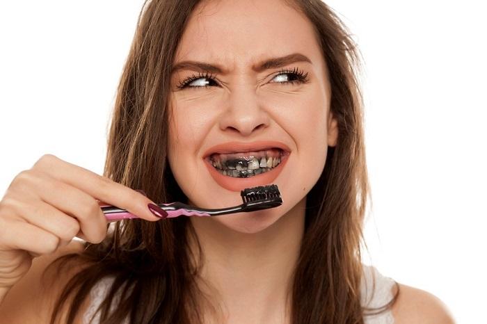 Tẩy trắng răng bằng than hoạt tính