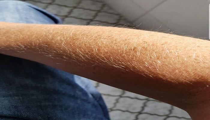 Lông tay màu trắng