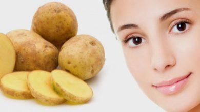 Photo of 9 cách trị nám tàn nhang bằng khoai tây không phải ai cũng biết