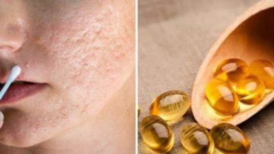 Photo of Trị sẹo lõm bằng vitamin E tại nhà với 3 công thức đơn giản