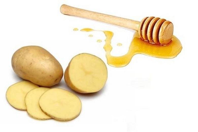 khoai tây và mật ong trị nám