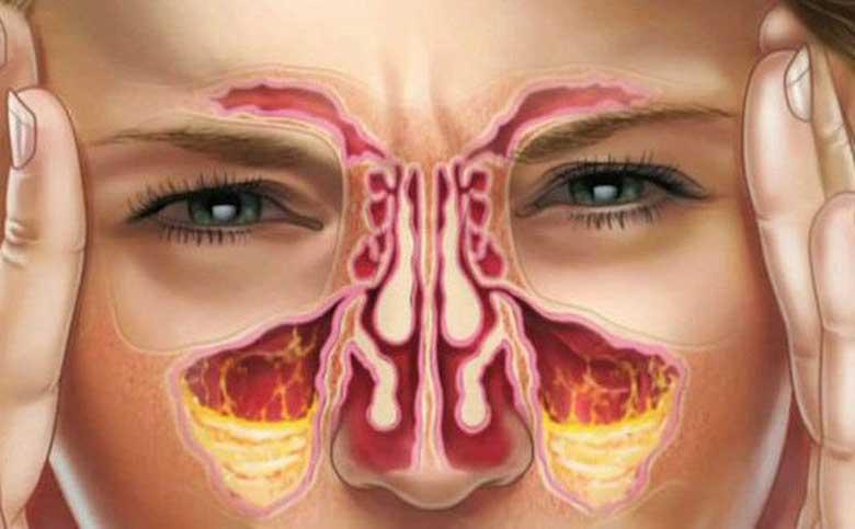 Chữa nghẹt mũi bằng bấm huyệt