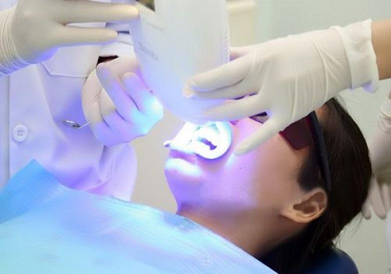 Công nghệ làm trắng răng