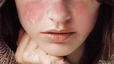 Photo of Dấu hiệu dị ứng da mặt và những điều cần biết