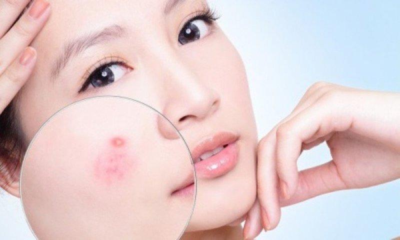 Photo of Điểm mặt gọi tên 5 spa trị mụn uy tín ở Hà Nội chị em phát cuồng