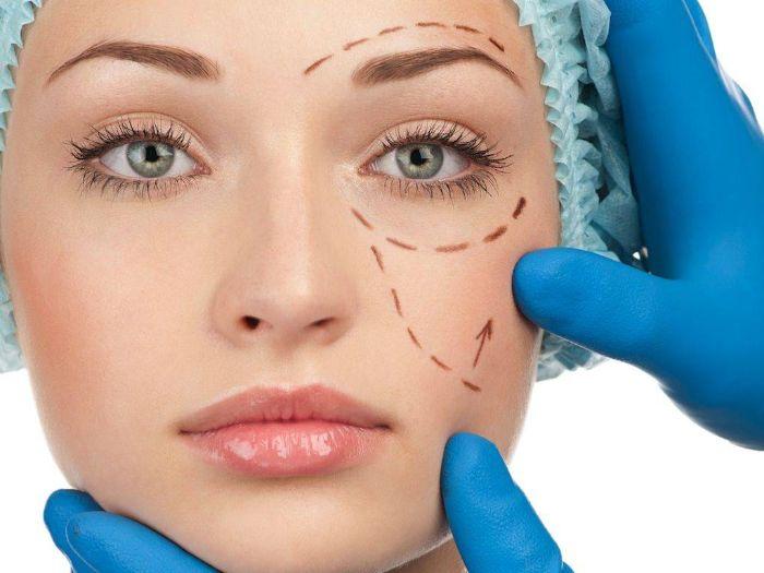 Trước khi giải đáp thắc mắc có nên căng da mặt không, bạn cần hiểu rõ về phương pháp này