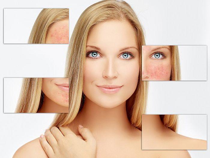 Da mặt mỏng dễ bị tổn thương do tác động bên ngoài