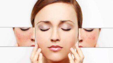 Photo of 7 công thức tẩy tế bào chết cho da mặt từ tự nhiên vừa rẻ lại hiệu quả