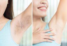 Photo of Tổng hợp từ A – Z về triệt lông nách có thể bạn chưa biết