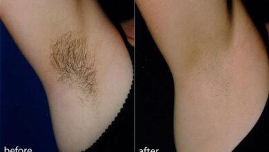 Photo of 7+ cách triệt lông nách tại nhà hiệu quả, an toàn và không đau